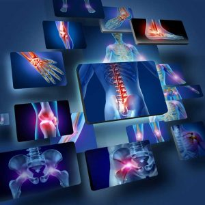 Anatomy of the human body with a group of panels of sore joints glowing as chronic pain indicators for seeking health care
