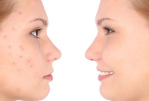 Before and After portrait image of woman with and without acne